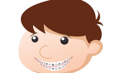 Aparatele dentare la copii: ce tipuri exista si ce afectiuni pot fi tratate